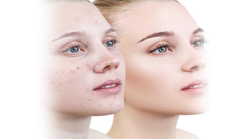 متخصص پوست اصفهان | انواع کوکتل های درمانی