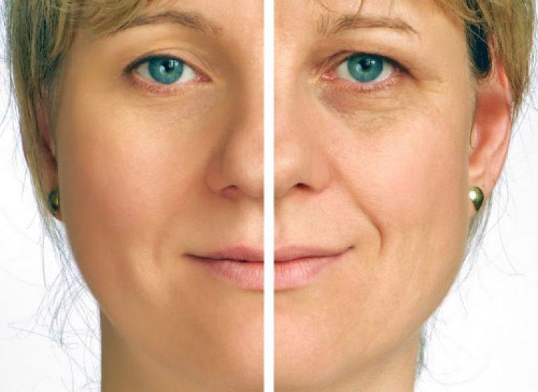 درمان چین و چروک و جراحی های صورت