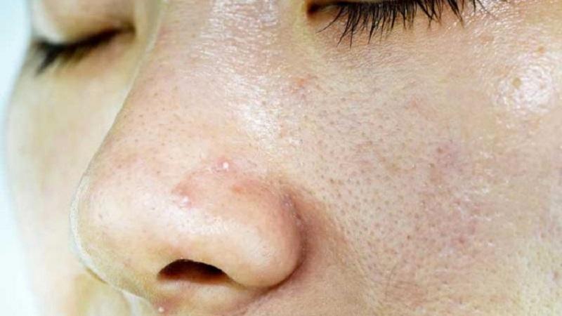 درمان منافذ باز پوست | متخصص پوست اصفهان