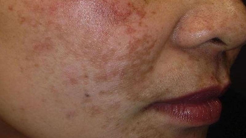 درمان هایپرپیگمنتیشن | متخصص پوست اصفهان