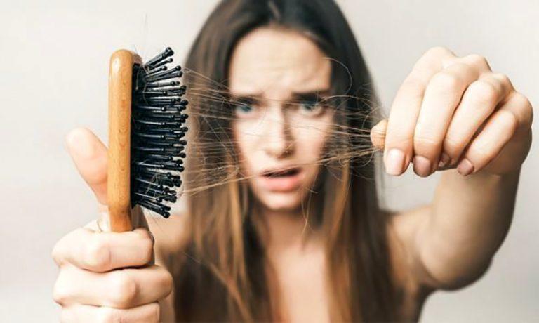 راکوتان و ریزش مو