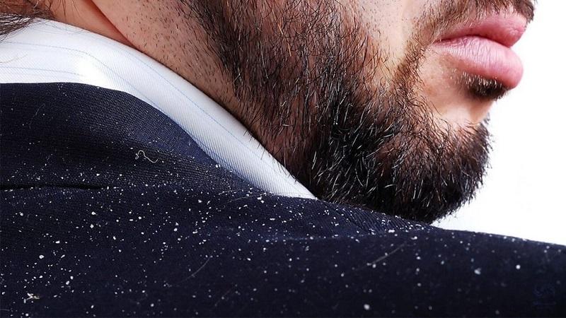 شامپو ضد شوره مناسب | متخصص پوست اصفهان