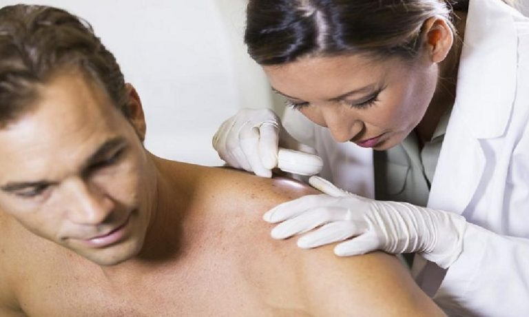 عوامل ایجاد سرطان پوست