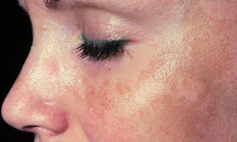 علل پیتریازیس آلبا و علائم آن