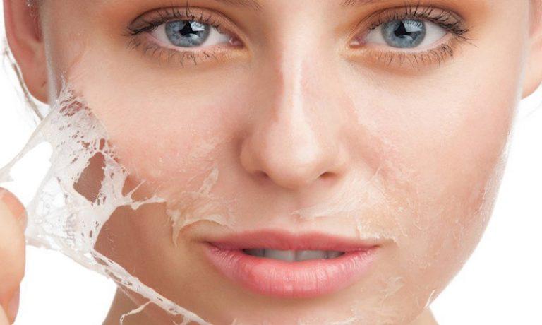 لایه برداری شیمیایی پوست و انواع آن