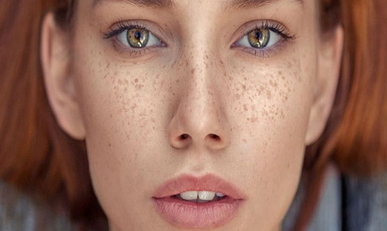 لک پوستی و انواع آن