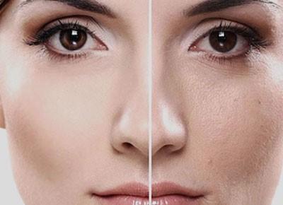 متخصص پوست اصفهان   مزوتراپی در مقایسه با لیپوساکشن