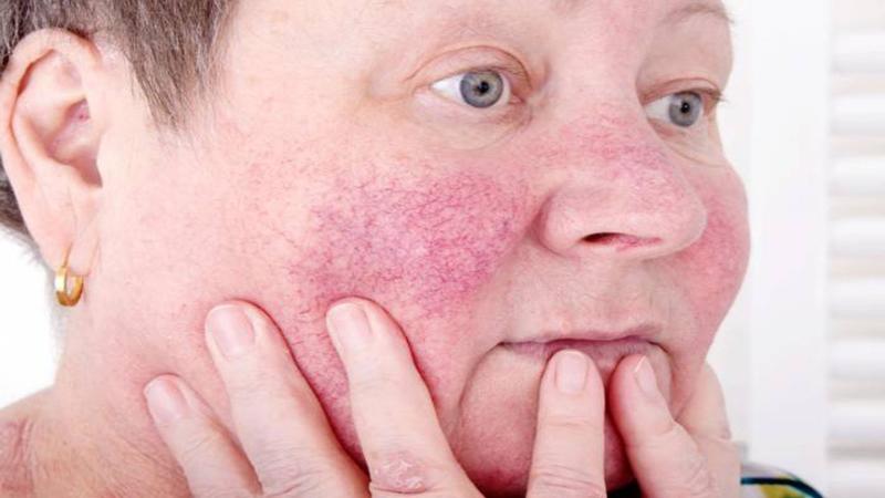 متخصص پوست اصفهان | واریس صورت چیست ؟ و علت آن