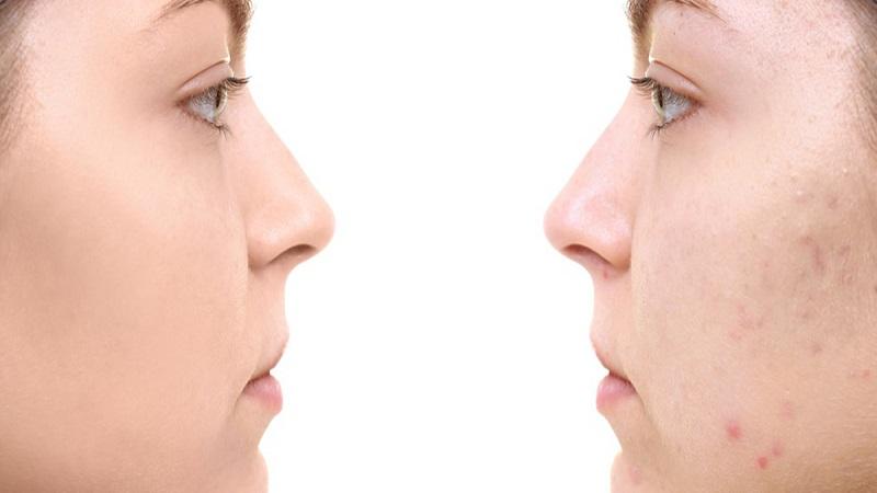 پانچ موثر در درمان جای جوش | متخصص پوست اصفهان