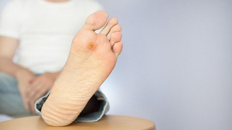 پیشگیری و درمان پینه پا | متخصص پوست اصفهان