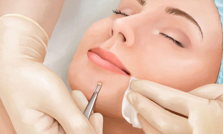 پیشگیری و درمان آبسه پوستی