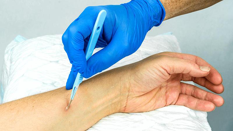 متخصص پوست اصفهان | پیشگیری و درمان آبسه پوستی