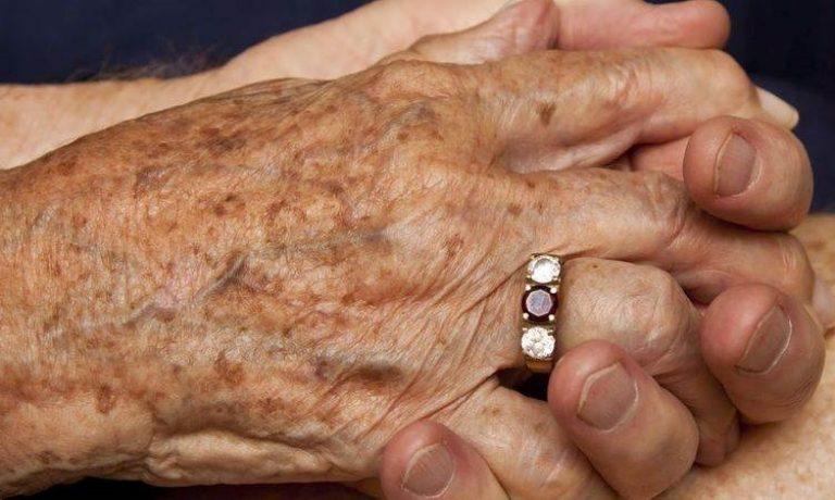 پیشگیری و درمان لکههای پیری