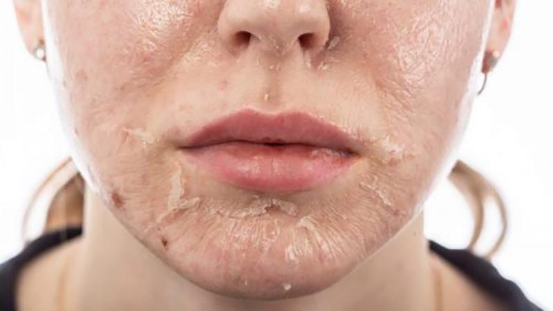 پیلینگ شیمیایی چیست | متخصص پوست اصفهان