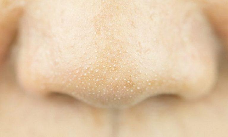 کاهش چربی بینی با راهکار مناسب