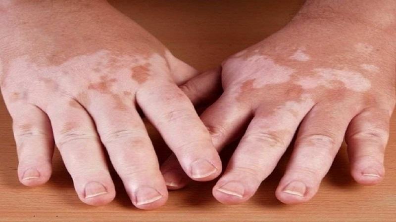 درمان لکهای سفید پوستی | متخصص پوست اصفهان