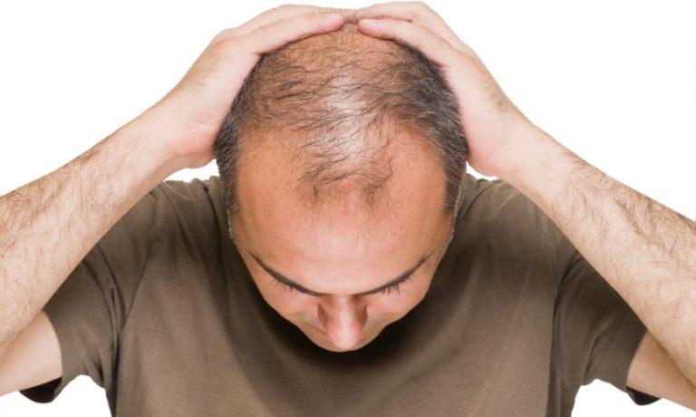 چگونه میتوان ریزش موی ارثی را درمان کرد؟
