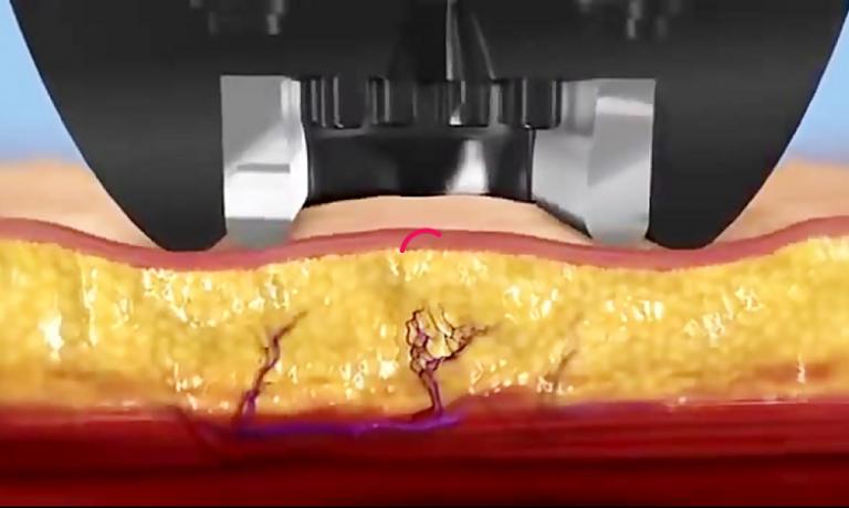 انیمیشن کاهش چربی بدن