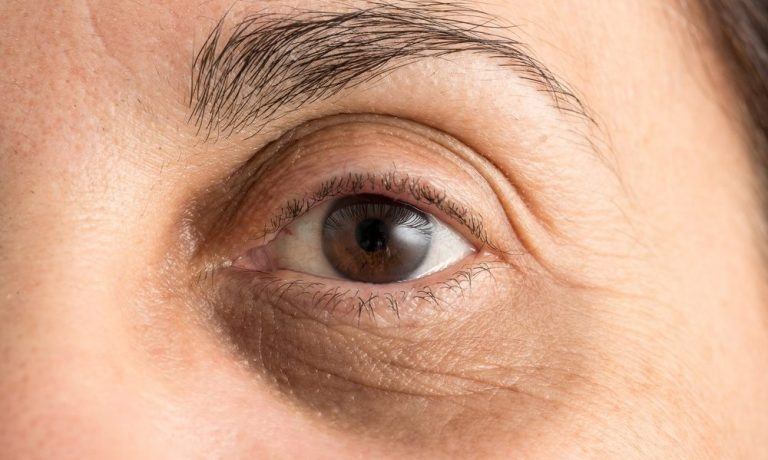 مزوتراپی: درمان تیرگی دور چشم