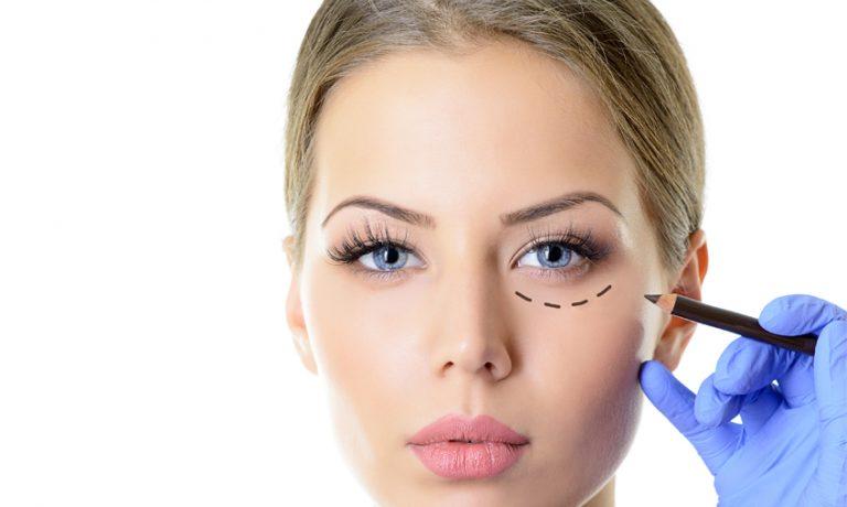 جراحی زیبایی پلک (بلفاروپلاستی)