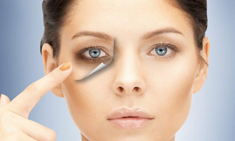 روشهای مختلف درمان سیاهی و تیرگی دور چشم